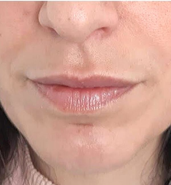 After-Remodelación Labios