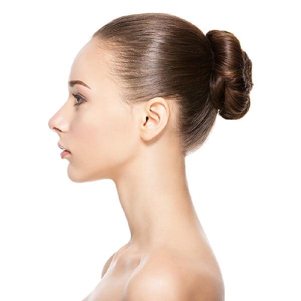 Lobuloplastia-Estética-Facial-Clinic-Mallorca-MED