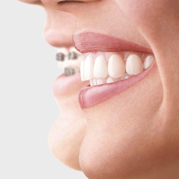 Ortodoncia-Odontología-Clinic-Mallorca-MED