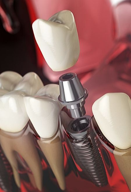 Tratamiento-Implantología-Clinic-Mallorca-MED