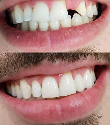 Tratamiento-Implantología-Dental-Clinic-Mallorca-MED