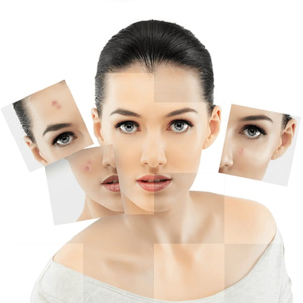 Tratamientos-acné-Clinic-Mallorca-MED