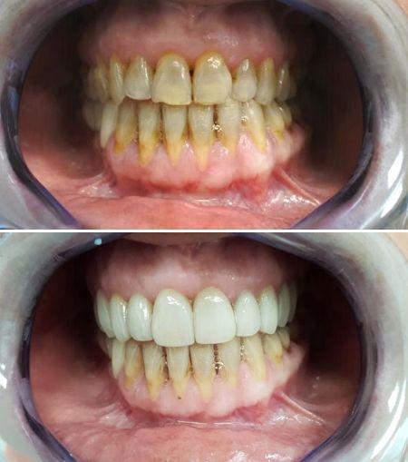 Carillas-Dentales-Estética-Dental-Clinic-Mallorca-MED-Palma