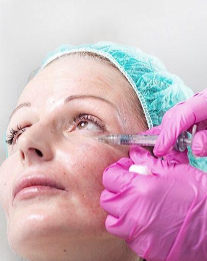 Eliminación-de-Ojeras-con-Ácido-Hialurónico-Clinic-Mallorca-MED