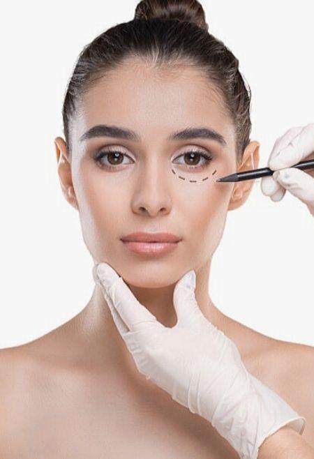 Tratamientos-sin-cirugía-para-Ojeras-Estética-Facial-Clinic-Mallorca-MED