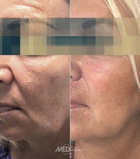 Tratamiento-Hilos-Tensores-antes-y-despues-Clinica-Mallorca-MED-Palma