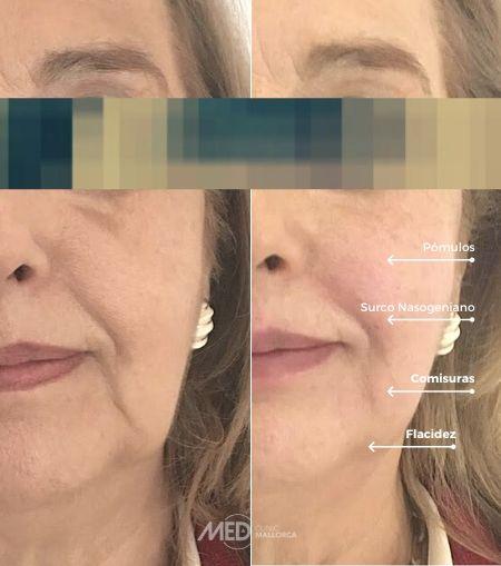 Tratamiento-Hilos-Tensores-antes-y-despues-Clinica-Mallorca-MED